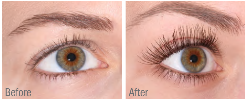 Which Eyelash Serum Is The Best And How Does It Work Xlash Canada